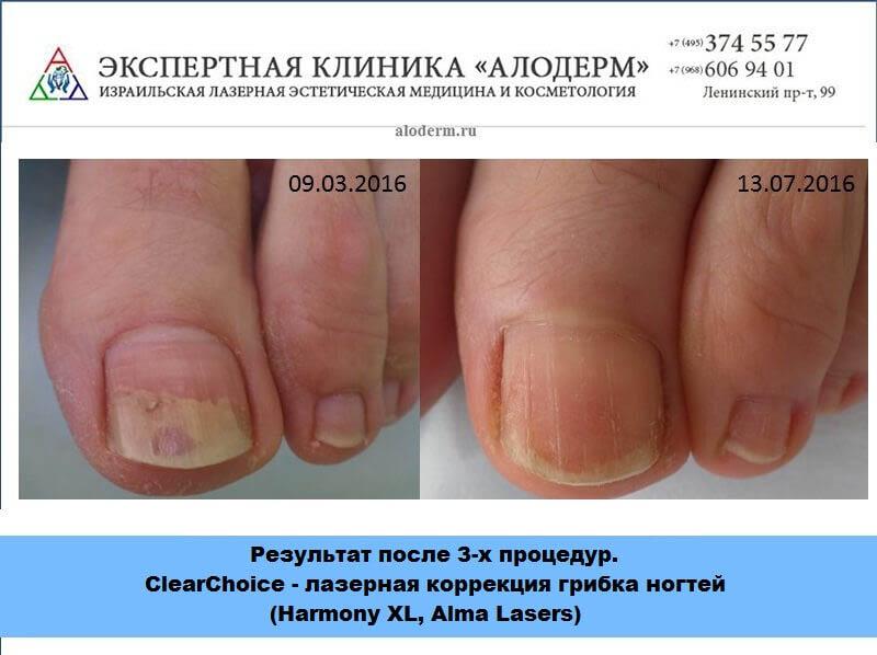 Где лечат грибок ногтей в москве бесплатно - О грибке ногтей
