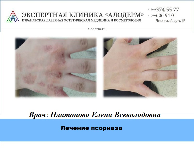 Институт здоровой кожи Псормак