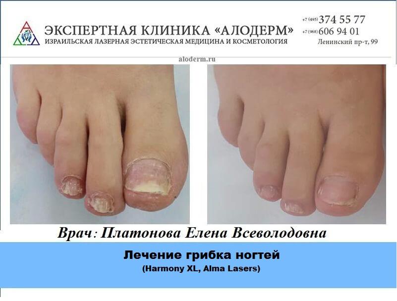 Лечение грибка ногтей в Москве - клиника лечения грибка