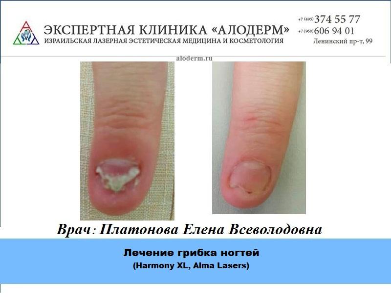 Виды грибка ногтей рук