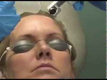 iPixel CO2 Dr  Gold Alma Lasers Fractional Ablation