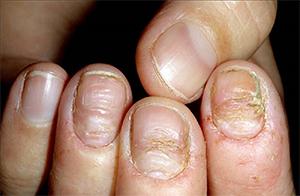 Лечение застарелого грибка ногтей