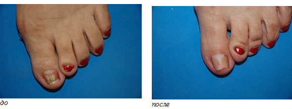Нарывает палец под ногтем чем лечить