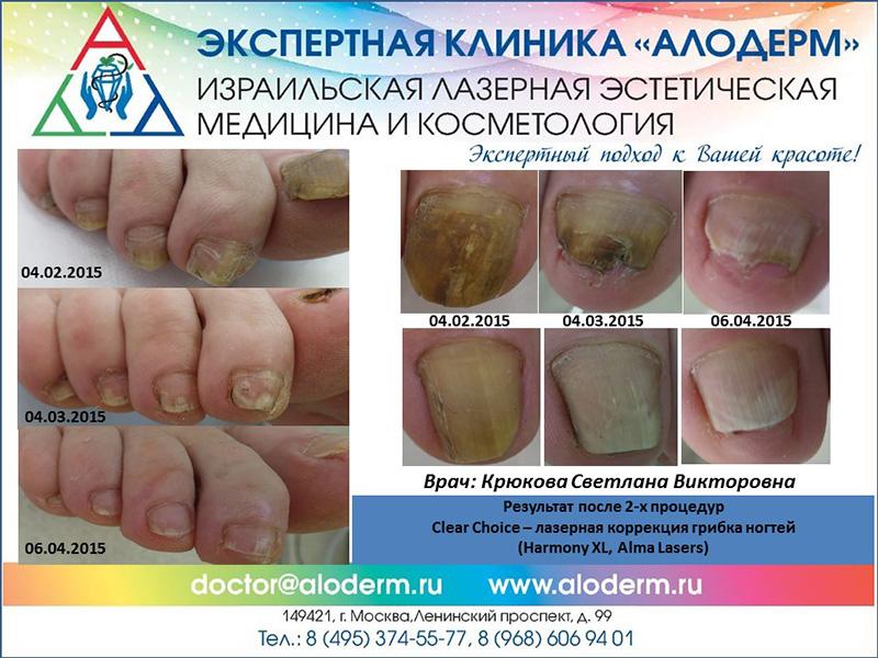 Набор для лечения ногтя